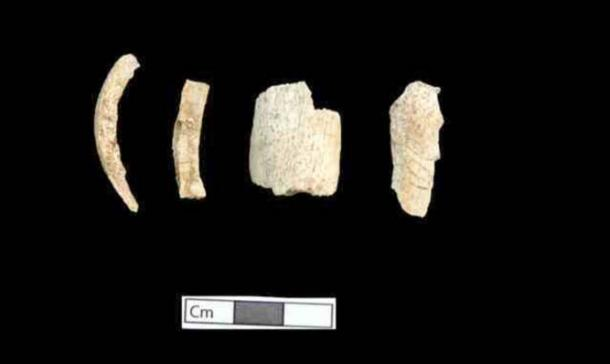 Person 5 bones (Amphipolis tomb) that have undergone the influence of high temperature, after burning.